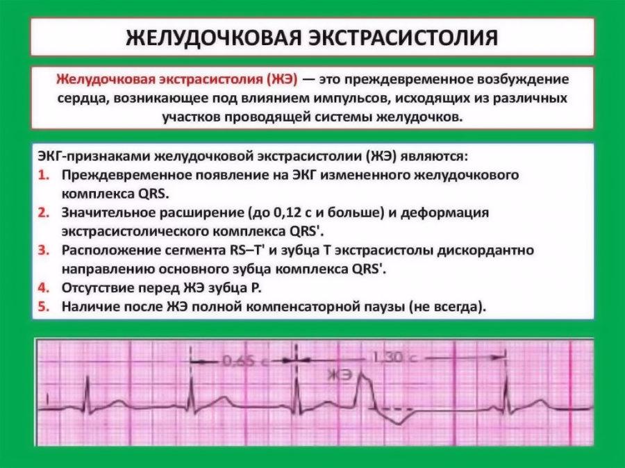 Кто из великих болел эпилепсией